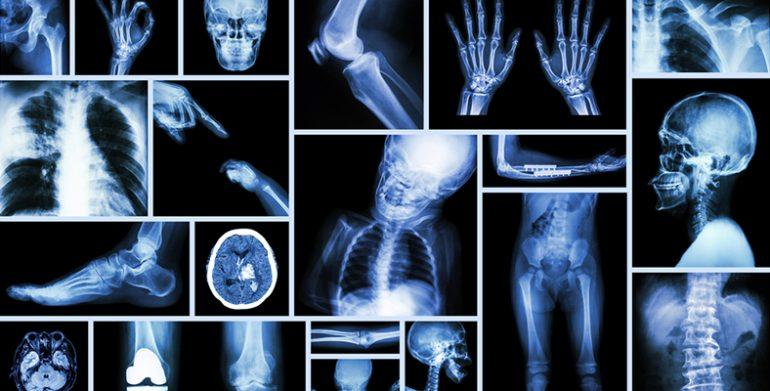 Experiencia en el tratamiento anestésico de los pacientes afectos de osteogénesis imperfecta