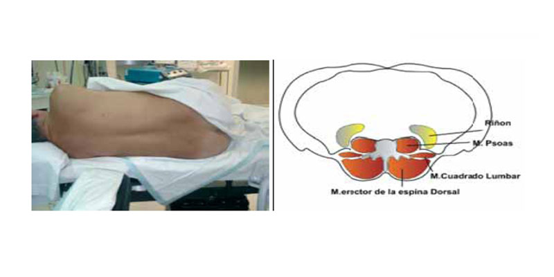 Bloqueos regionales en el dolor postoperatorio