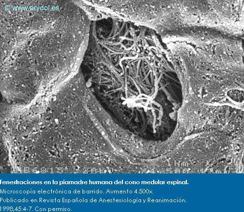 Fenestraciones en la piamadre humana del cono medular espinal. Microscopía electrónica de barrido. Aumento 4.500x. Publicado en Revista Española de Anestesiología y Reanimación. 1998;45:4-7. Con permiso.