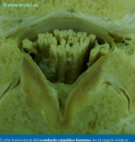 Corte transversal del conducto raquídeo humano en la región lumbar.