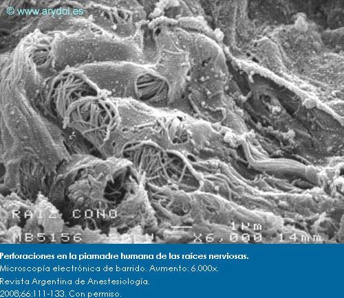 Perforaciones en la piamadre humana de las raíces nerviosas.Microscopía electrónica de barrido. Aumento: 6.000x. Revista Argentina de Anestesiología. 2008;66:111-133. Con permiso.