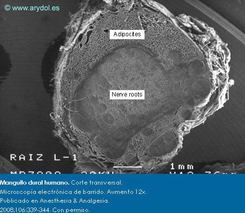 Manguito dural humano. Corte transversal. Microscopía electrónica de barrido. Aumento 12x. Publicado en Anesthesia & Analgesia. 2008;106:339-344. Con permiso.