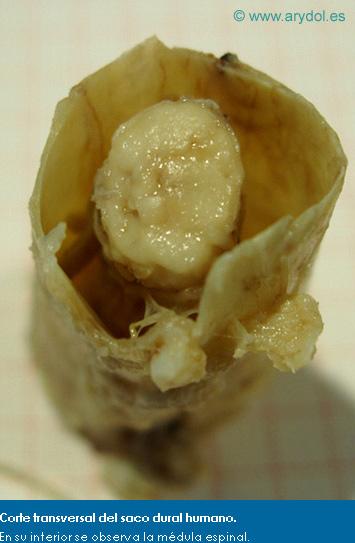 Corte transversal del saco dural humano. En su interior se observa la médula espinal.