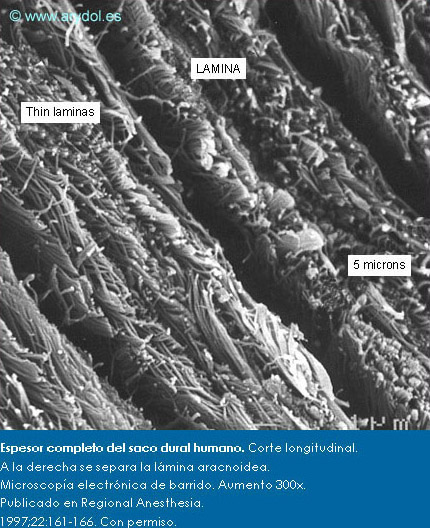Fibras de colágeno en la lámina dural más externa. Microscopía electrónica de barrido. Aumento 1.000x. Publicado en Revista Española de Anestesiología y Reanimación. 1996;43:130-134. Con permiso.