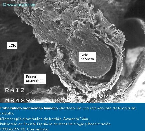 Trabeculado aracnoideo humano alrededor de una raíz nerviosa de la cola de caballo. Microscopía electrónica de barrido. Aumento 100x.Publicado en Revista Española de Anestesiología y Reanimación.1999;46:99-105. Con permiso.