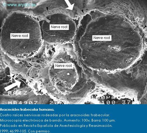 Aracnoides trabecular humana. Cuatro raíces nerviosas rodeadas por la aracnoides trabecular. Microscopía electrónica de barrido. Aumento: 100x. Barra: 100 µm. Publicado en Revista Española de Anestesiología y Reanimación. 1999; 46:99-105. Con permiso.