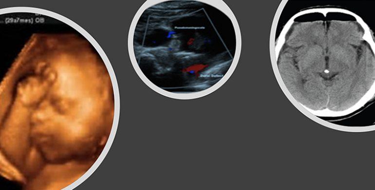 Complicaciones inesperadas del embarazo-parto II. Anestesia espinal
