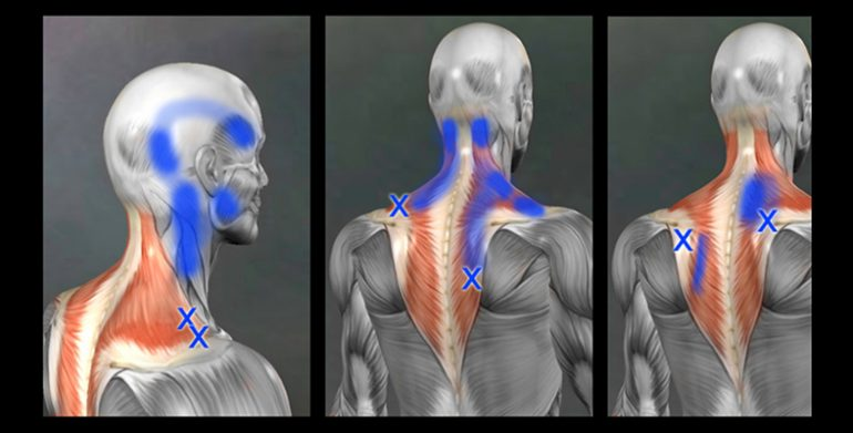 HOW TO MANAGE MYOFASCIAL PAIN SYNDROMES