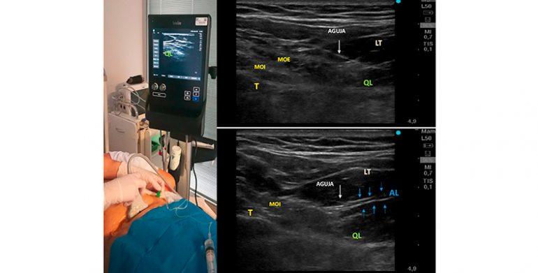 Bloqueo del cuadrado lumbar: nueva vía de abordaje para el dolor crónico de cadera. Serie de casos.   Quadratus lumborum block. New approach for a chronic hip pain. Cases report